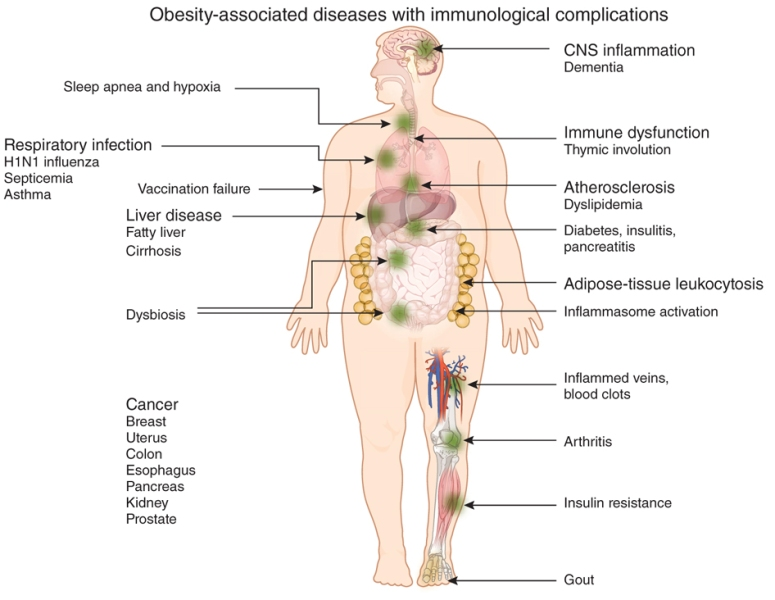 obesity-complications