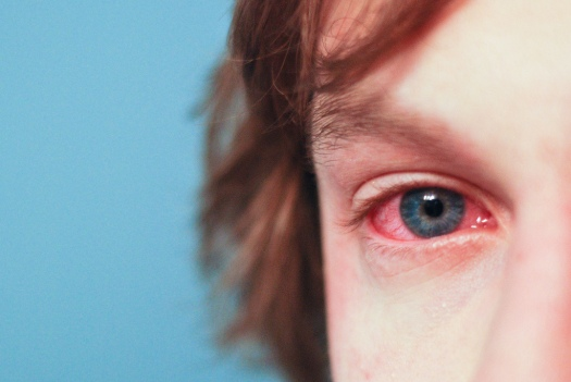 allergyeye